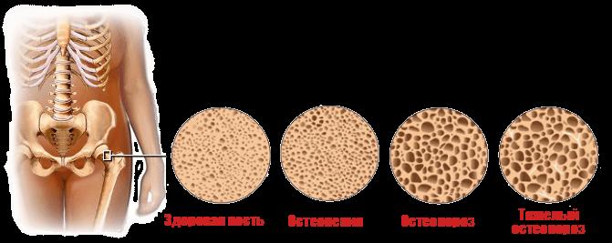 Схема стадий развития остеопороза