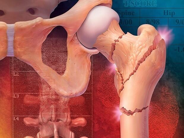 Osteonecrosis Treatment Zithromax