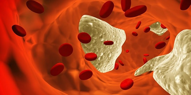 Вид артерии изнутри