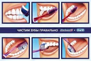 Схема Как чистить зубы