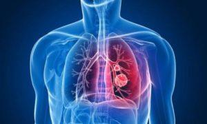 При пневмонии происходит воспаление легких