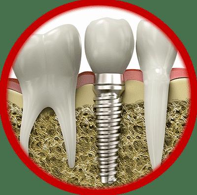 Имплантация зубов - рисунок